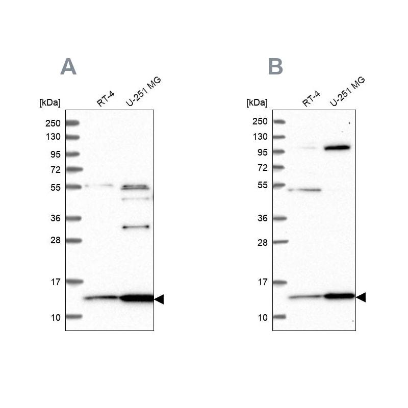 TRMT112 Antibody in Western Blot (WB)