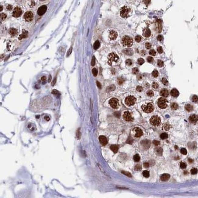MPP8 Antibody in Immunohistochemistry (IHC)