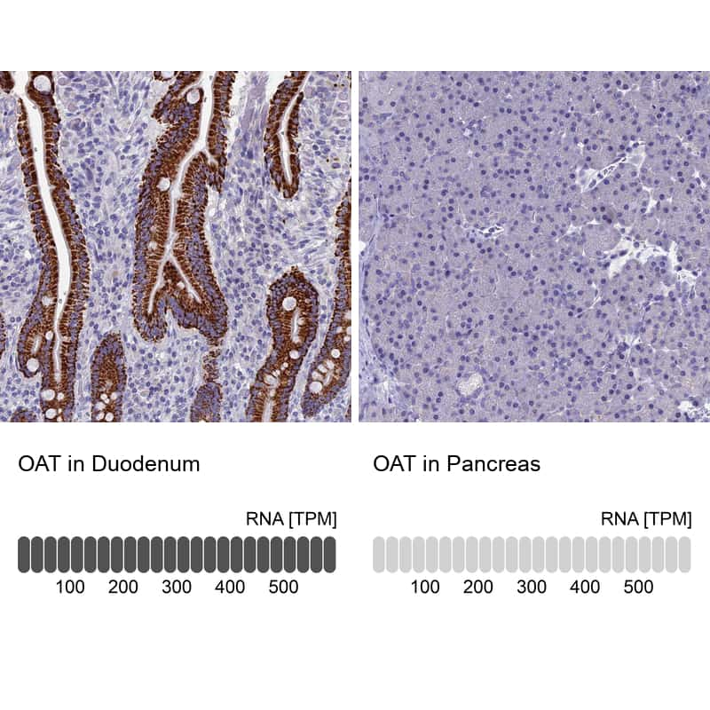 OAT Antibody in Relative expression