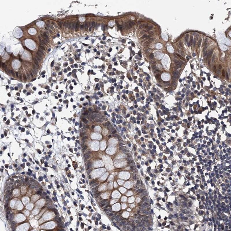 NAA16 Antibody in Immunohistochemistry (IHC)