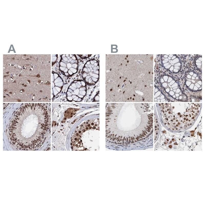 CSTF3 Antibody in Immunohistochemistry (IHC)