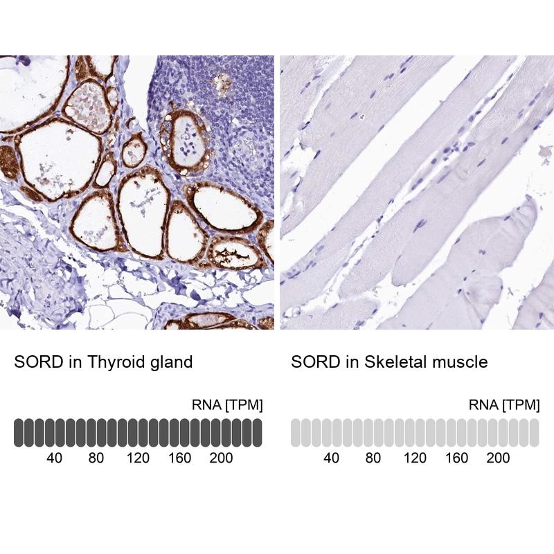 Sorbitol Dehydrogenase Antibody in Relative expression