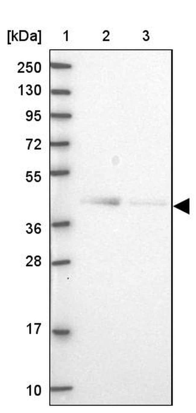 OGFOD2 Antibody in Western Blot (WB)