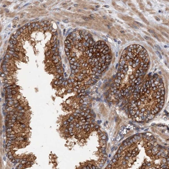 COG3 Antibody in Immunohistochemistry (IHC)