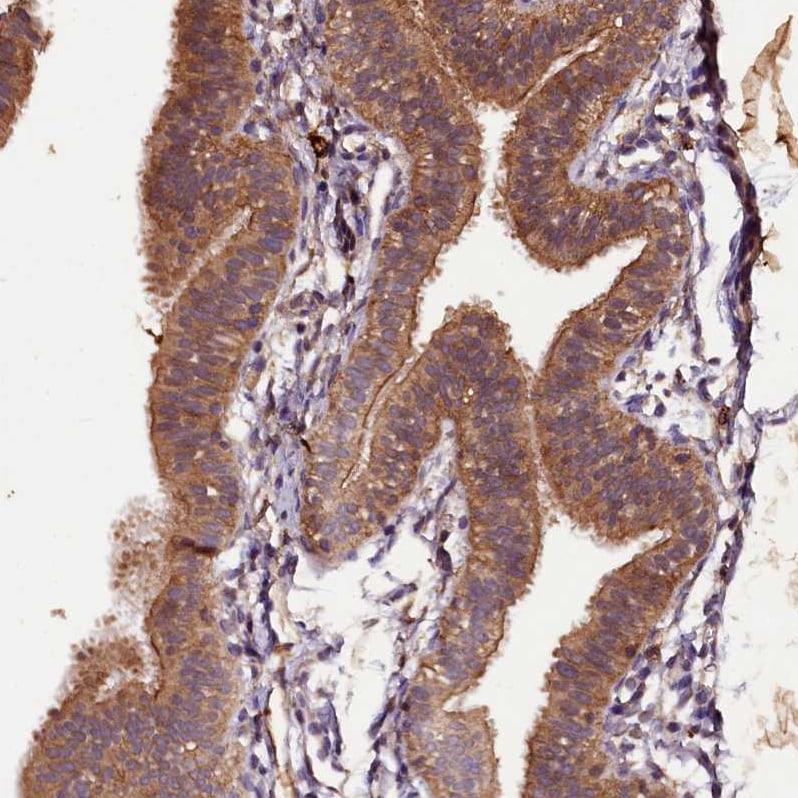 PLXNB1 Antibody in Immunohistochemistry (IHC)