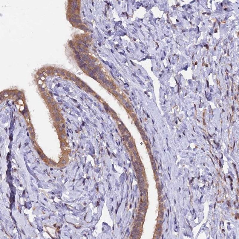 MAN2C1 Antibody in Immunohistochemistry (IHC)