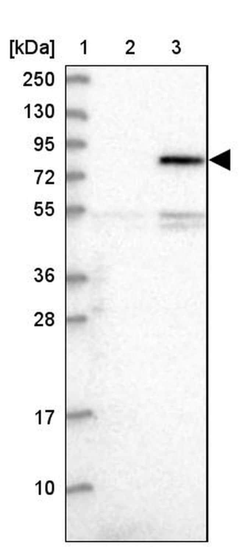 NEK8 Antibody in Western Blot (WB)