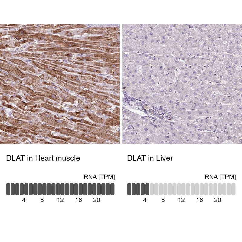 DLAT Antibody in Immunohistochemistry (IHC)