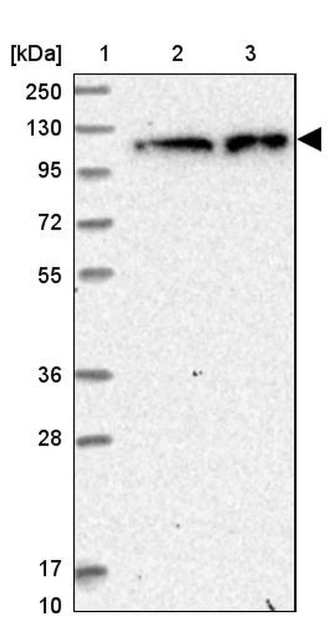 ZC3H7A Antibody in Western Blot (WB)
