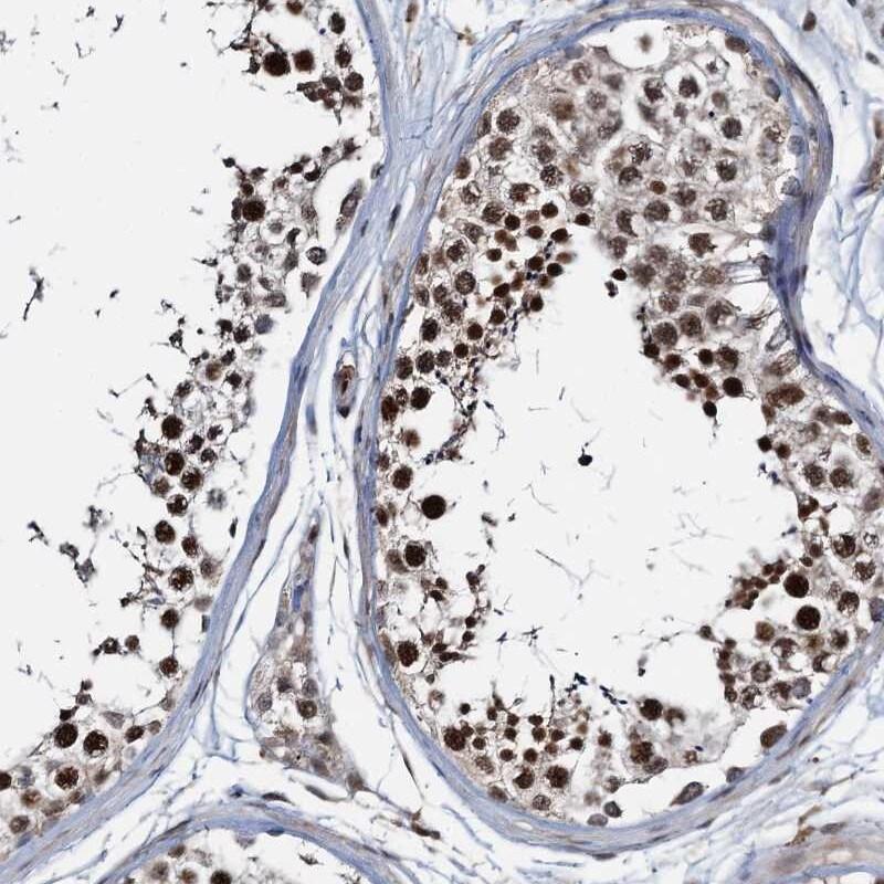 ZNF609 Antibody in Immunohistochemistry (IHC)