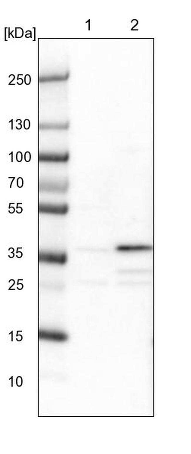 ZNF609 Antibody in Western Blot (WB)