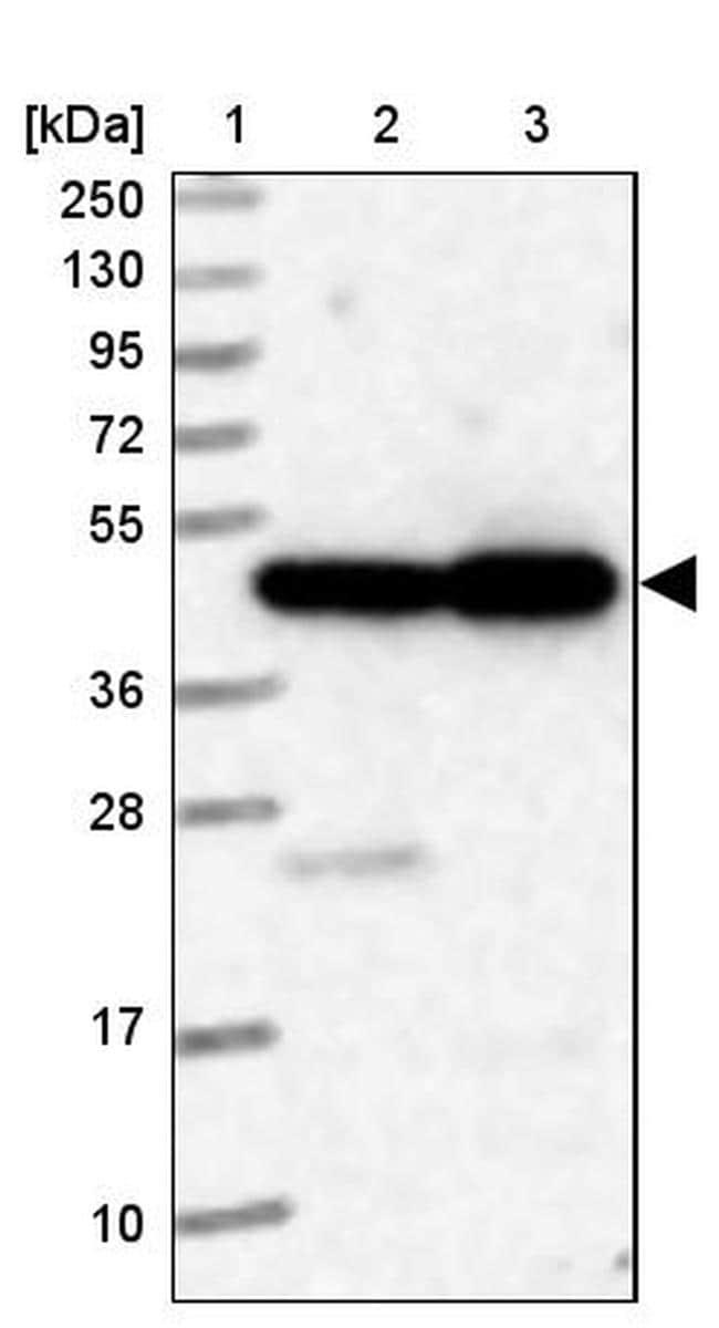 ELAC1 Antibody in Western Blot (WB)