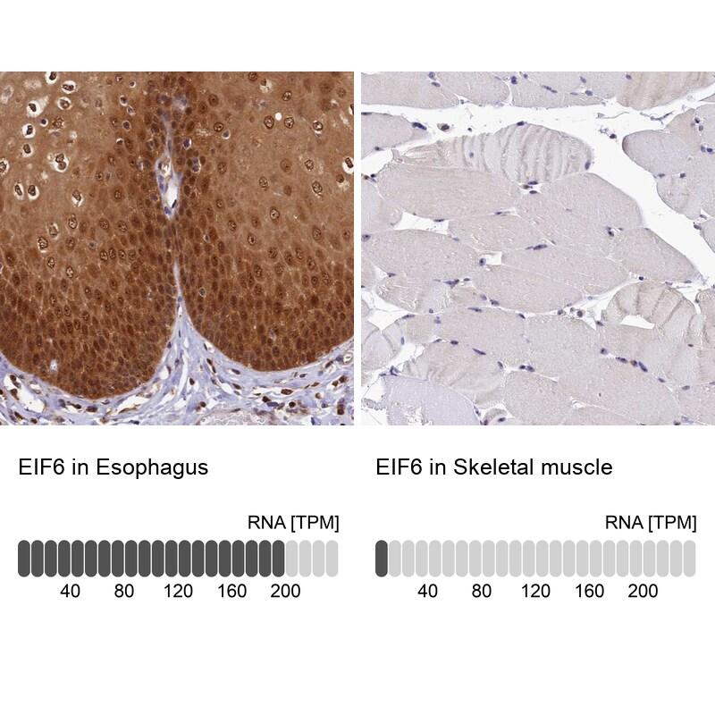 eIF6 Antibody in Immunohistochemistry (IHC)