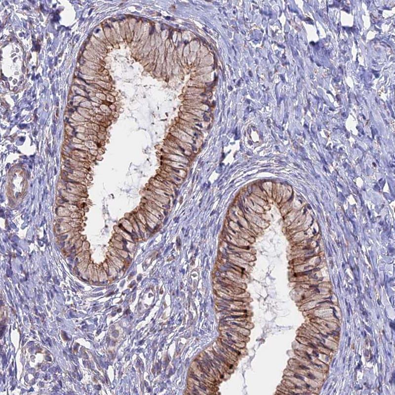 MYO5B Antibody in Immunohistochemistry (IHC)
