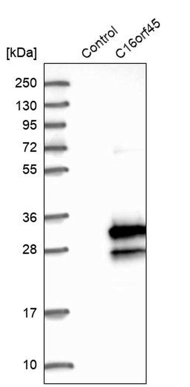 CP045 Antibody in Western Blot (WB)
