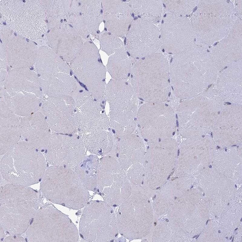 KCTD14 Antibody in Immunohistochemistry (IHC)