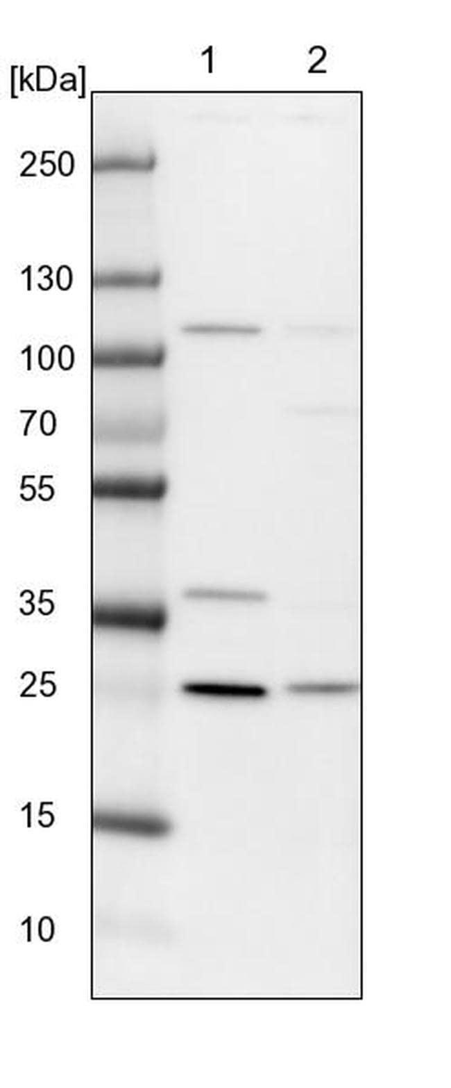 GINS3 Antibody in Western Blot (WB)