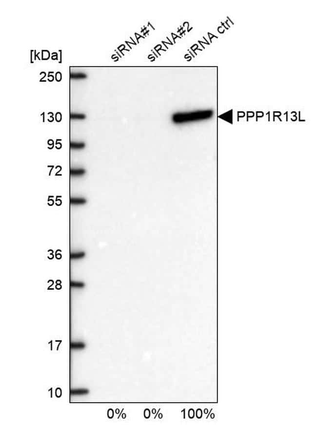 PPP1R13L Antibody in Western Blot (WB)
