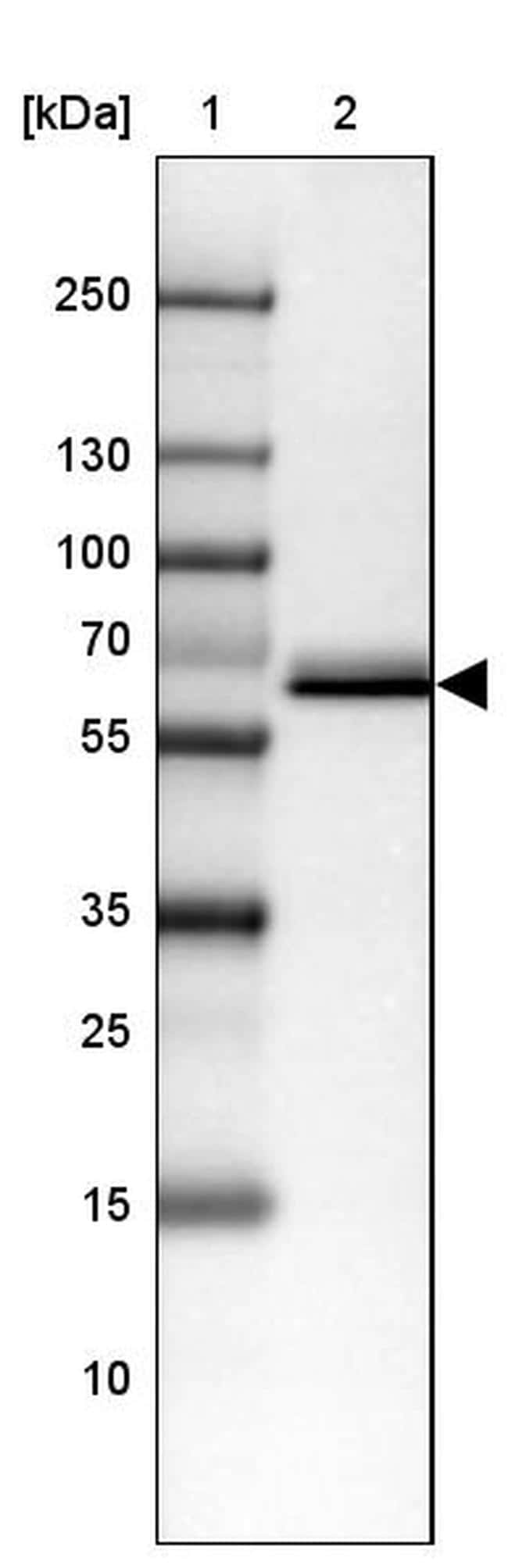 CES3 Antibody in Western Blot (WB)