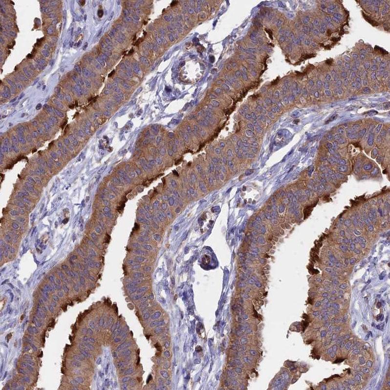 GAS8 Antibody in Immunohistochemistry (IHC)