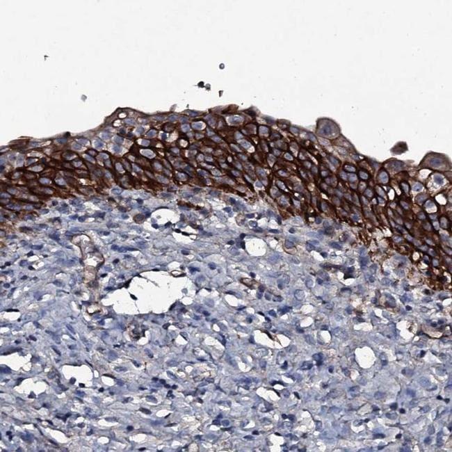ATP5SL Antibody in Immunohistochemistry (IHC)