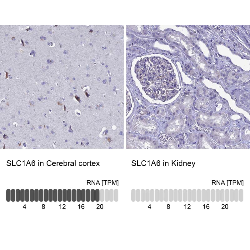 SLC1A6 Antibody in Relative expression