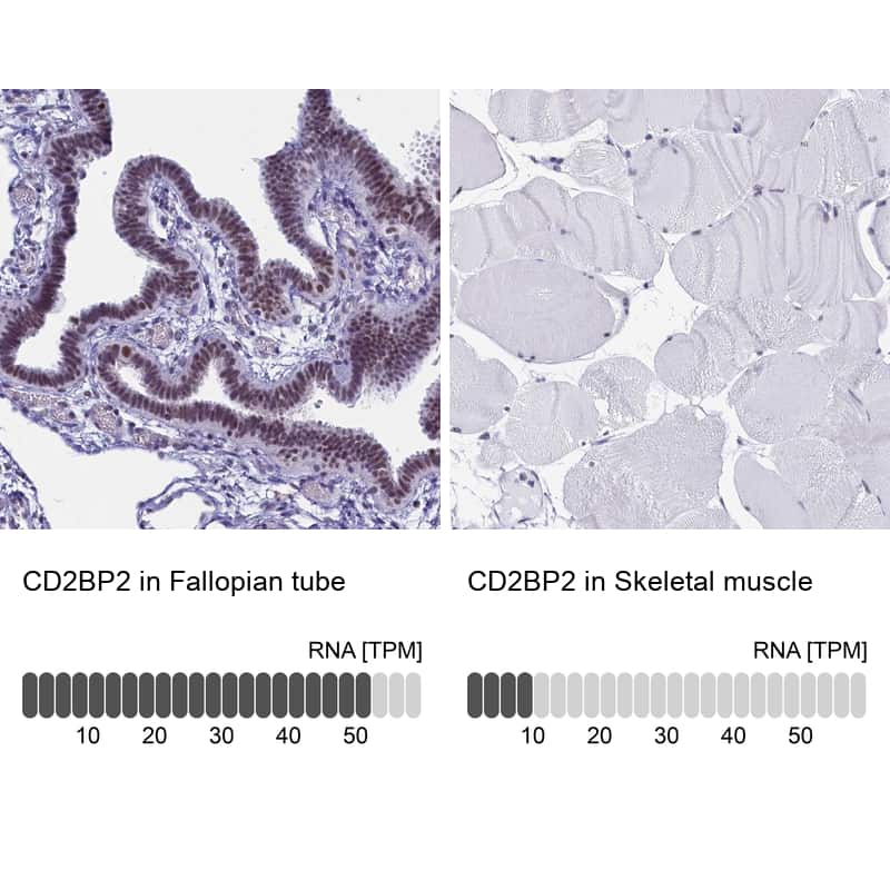CD2BP2 Antibody in Relative expression