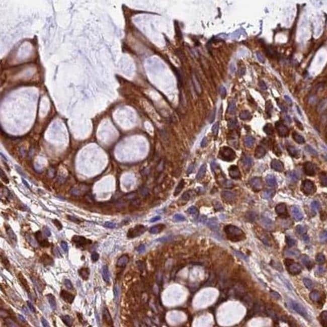 KARS Antibody in Immunohistochemistry (IHC)