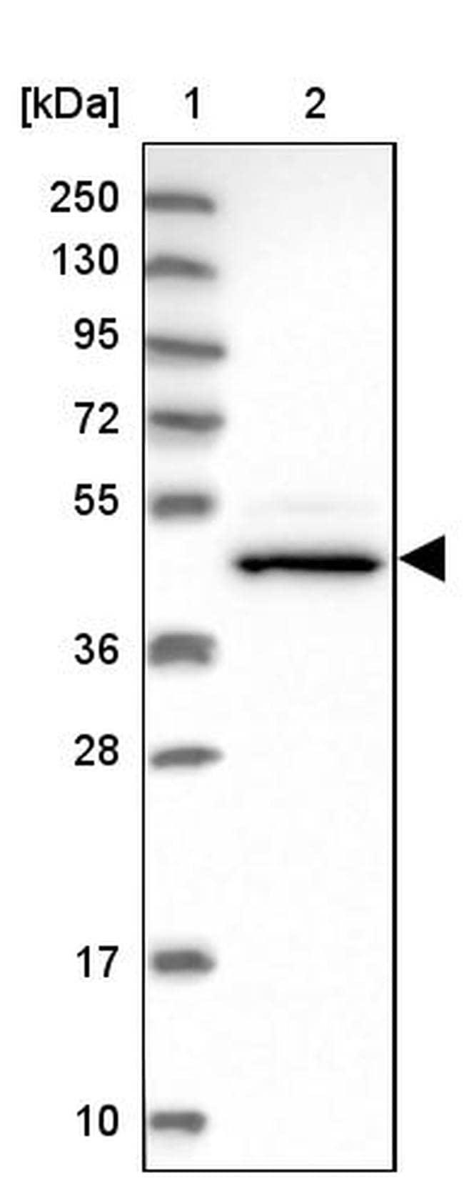 CHST12 Antibody in Western Blot (WB)