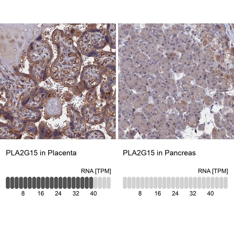 LYPLA3 Antibody in Relative expression
