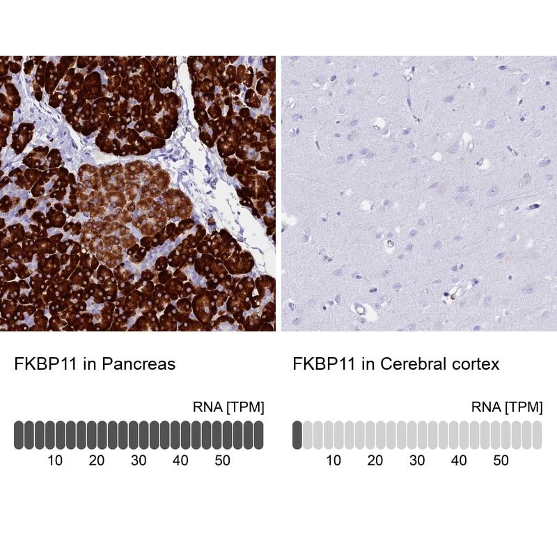 FKBP11 Antibody in Immunohistochemistry (IHC)