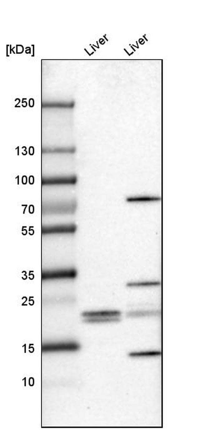FKBP11 Antibody in Western Blot (WB)