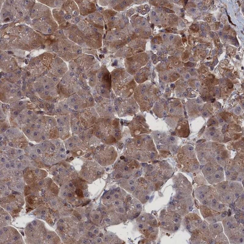 LYPLA3 Antibody in Immunohistochemistry (IHC)