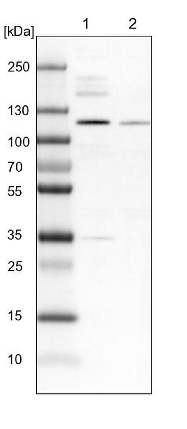 ZNF598 Antibody in Western Blot (WB)