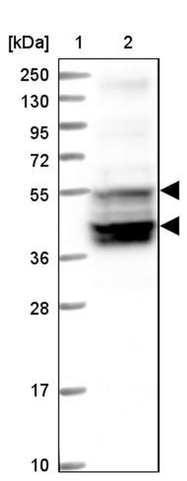 SLC38A7 Antibody in Western Blot (WB)