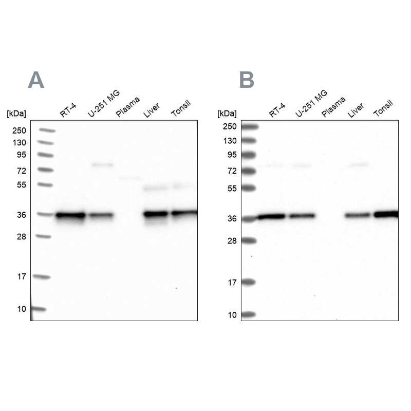 NUBP1 Antibody in Western Blot (WB)