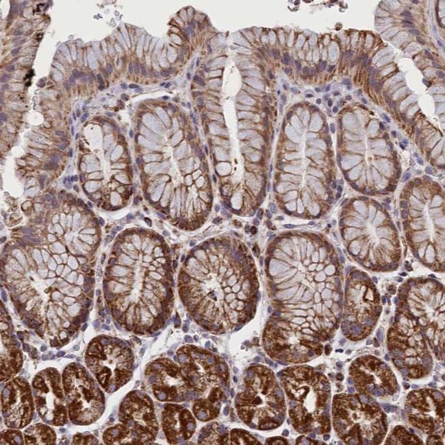 IFT122 Antibody in Immunohistochemistry (IHC)