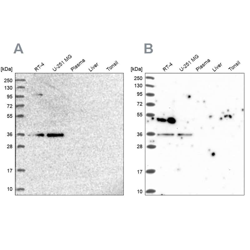 POLR2C Antibody in Western Blot (WB)
