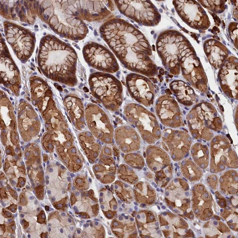HN1L Antibody in Immunohistochemistry (IHC)