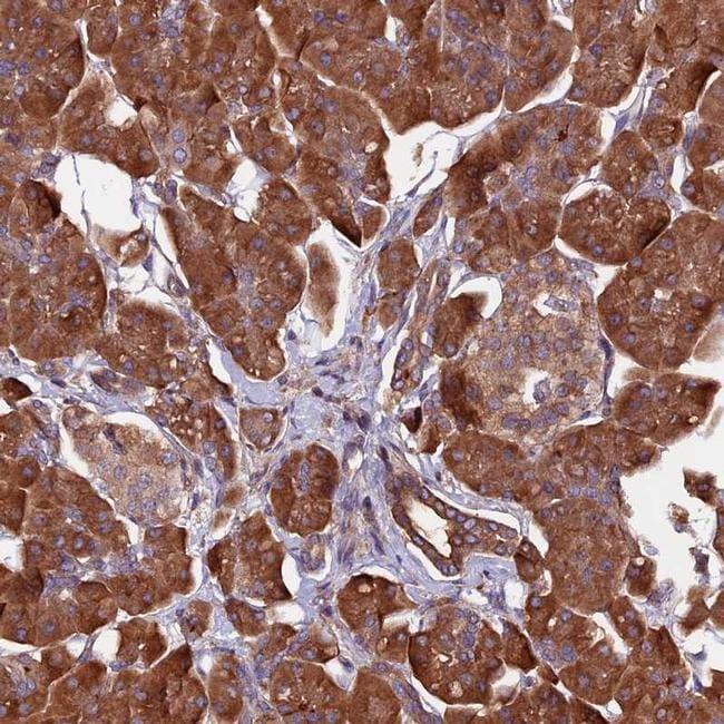 ZNF598 Antibody in Immunohistochemistry (IHC)