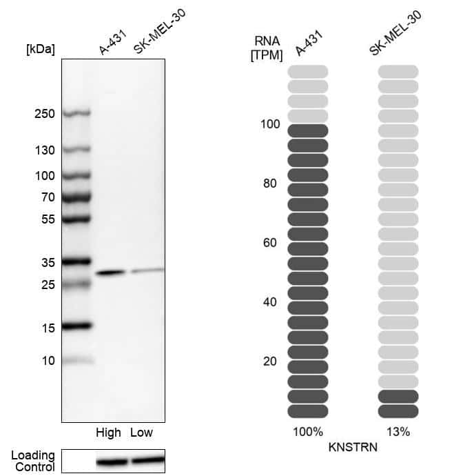C15orf23 Antibody in Relative expression