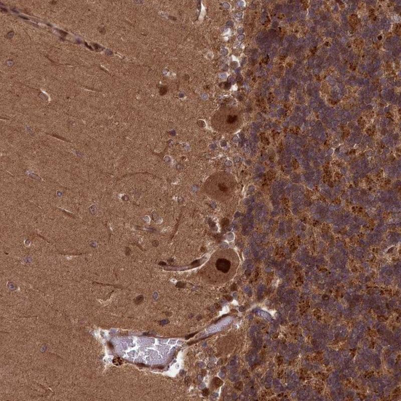 NAE1 Antibody in Immunohistochemistry (IHC)