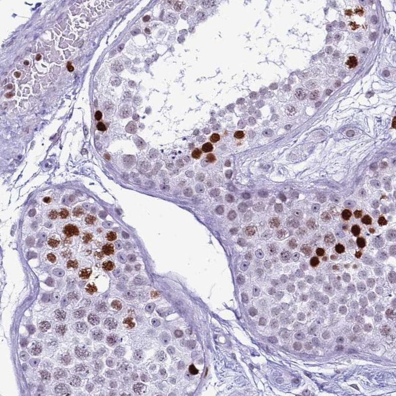 Histone H4 Antibody in Immunohistochemistry (IHC)