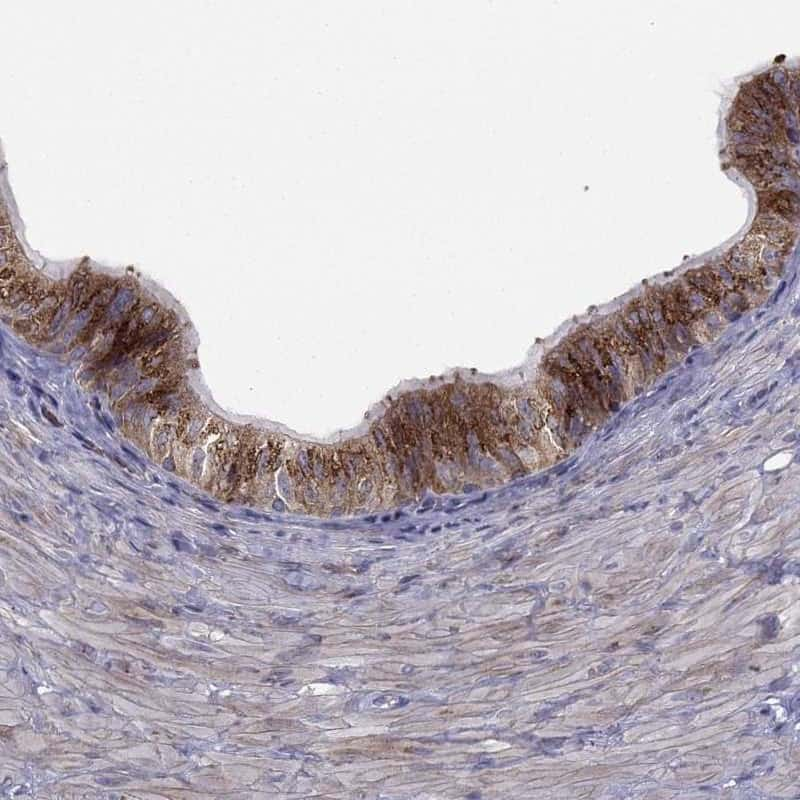 B4GALT7 Antibody in Immunohistochemistry (IHC)