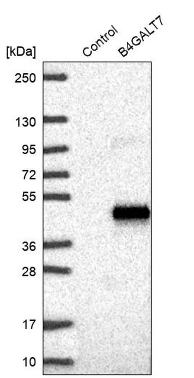 B4GALT7 Antibody in Western Blot (WB)