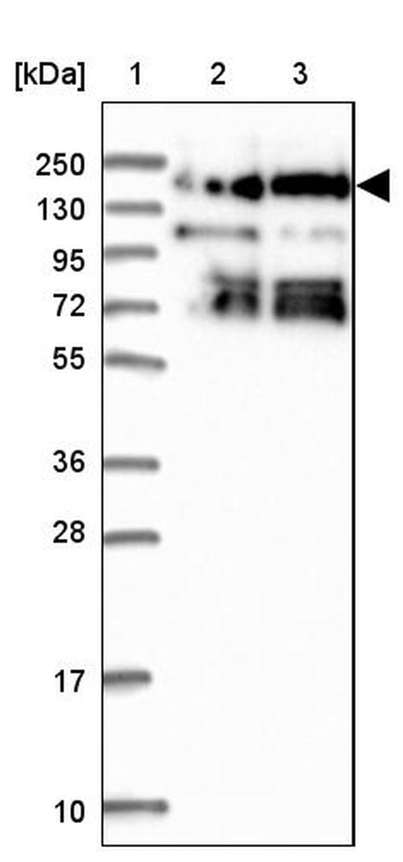 SBNO1 Antibody in Western Blot (WB)