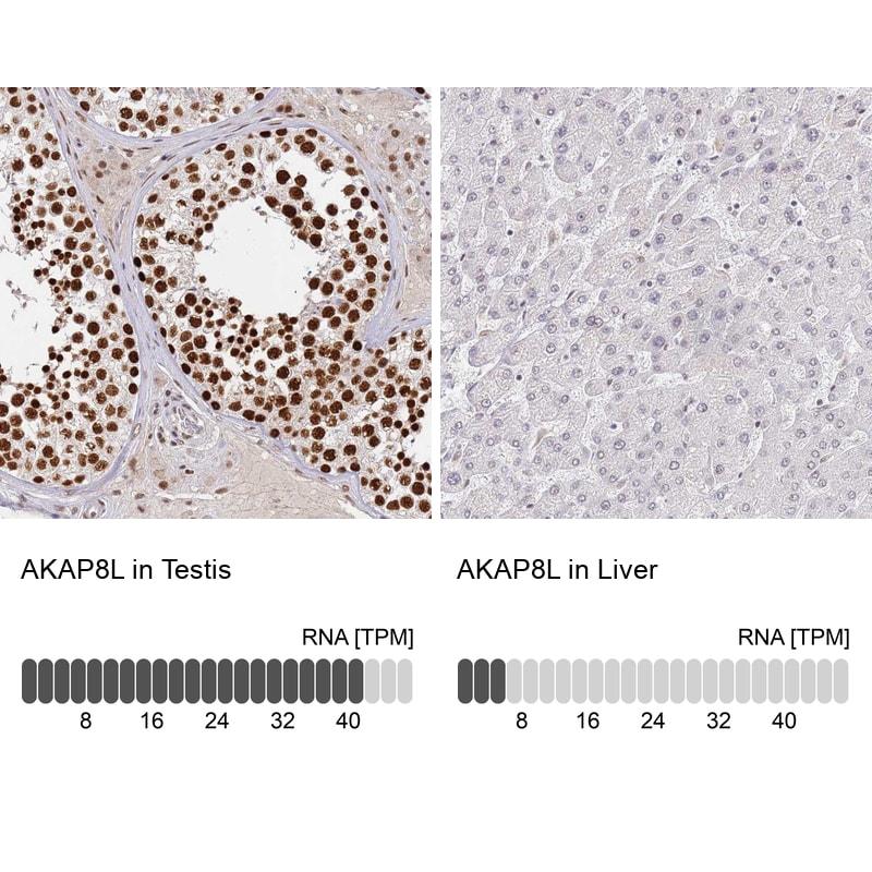 AKAP8L Antibody in Relative expression