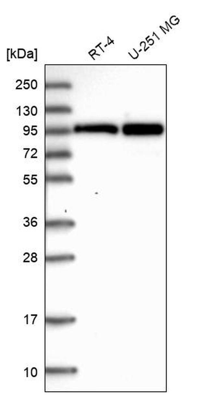 AKAP8L Antibody in Western Blot (WB)