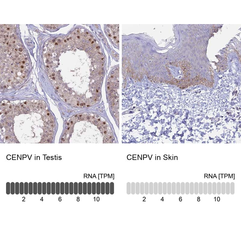 CENPV Antibody in Relative expression