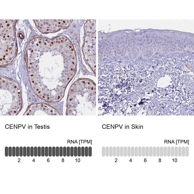 CENPV Antibody in Relative expression